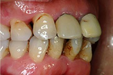 Q&A「前歯が最近出歯になって開いてきた感じがする…」 - レガデンタル ...