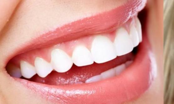 イメージを左右する前歯の歯の角度
