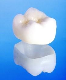 ジルコニアは金属を使わない歯の素材の中では、現在最も硬く安定性の高い素材です。