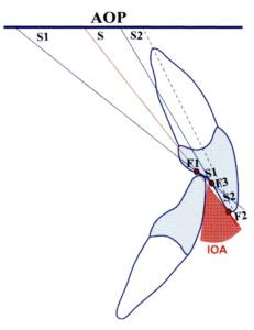 正常な上下の前歯の関係