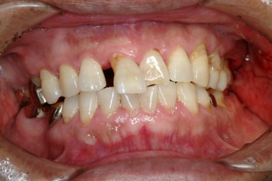 外傷性咬合での歯牙