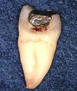 抜歯された歯から読み解く銀歯と歯の境目からの2次う蝕