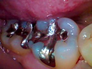 銀歯でできているインレー