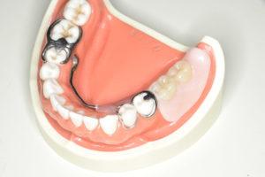装着された状態での片側遊離端欠損の下顎クラスプ義歯